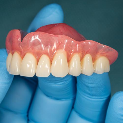 Dentist holding top set of dentures