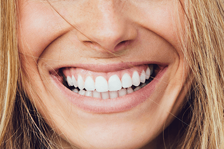 Smiling lady wearing dentures